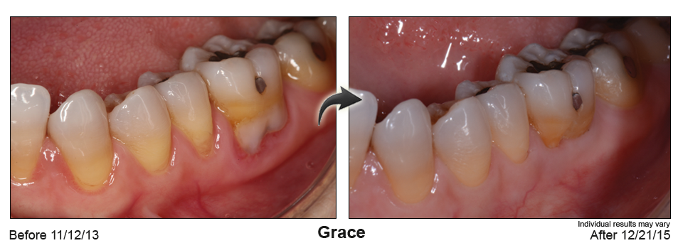 fix gum recession Orange County